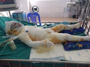 Bé Kem nhập viện trong tình trạng bị bỏng nặng