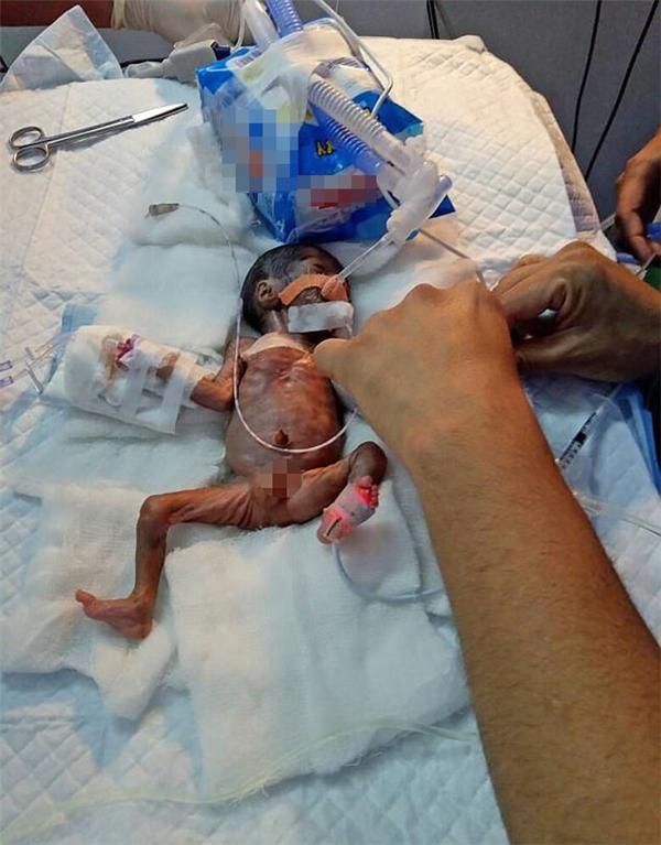 Em bé hạt tiêu, sức sống mãnh liệt của những em bé hạt tiêu, những em bé sinh non chỉ 0,5kg
