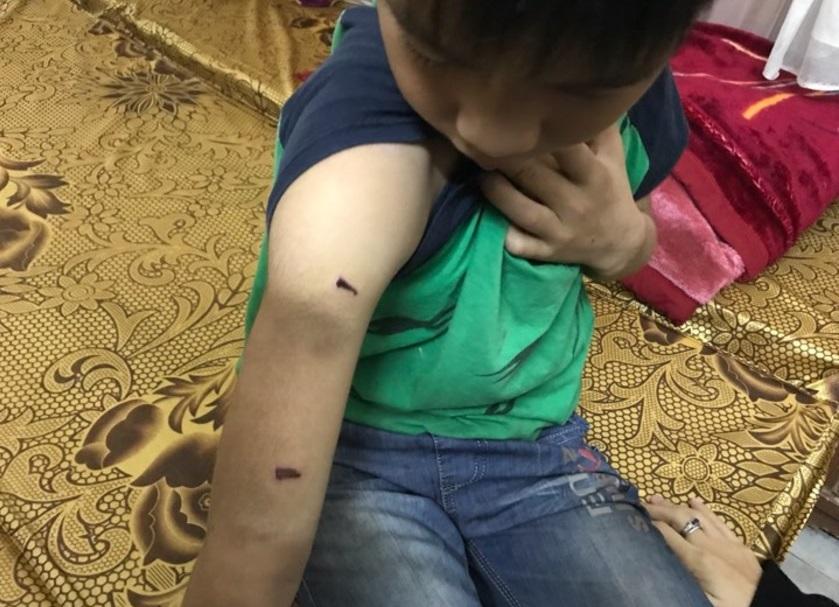 bạo hành, bố đánh đập con trai 9 tuổi