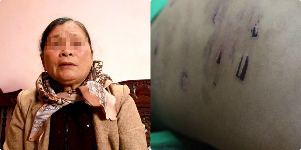 """Bà ngoại bé trai 9 tuổi bị bố bạo hành : """"Thấy cháu đau đớn, tôi không cầm được nước mắt"""""""