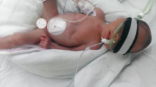 bé sinh non, sự sống xót kỳ diệu của bé sinh non