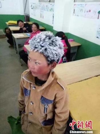 cậu bé với mái tóc đóng băng tới trường