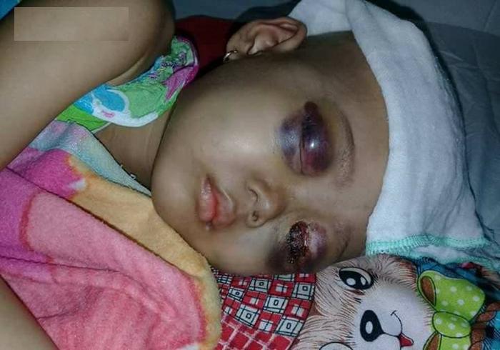 xót thương bé gái 4 tuổi với đôi mắt nổ tung vì ung thư hành hạ