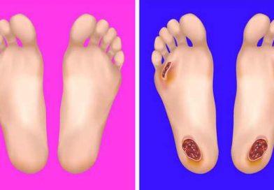 Nhận diện dấu hiệu bệnh qua thay đổi ở bàn chân