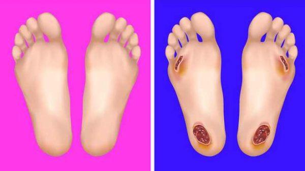 Dấu hiệu bệnh tật thông qua thay đổi của bàn chân