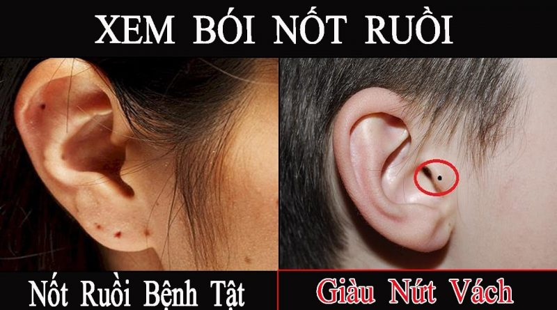 doan-van-menh-qua-not-ruoi-o-tai